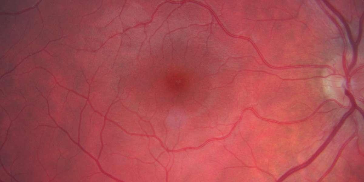 central retinal imaging