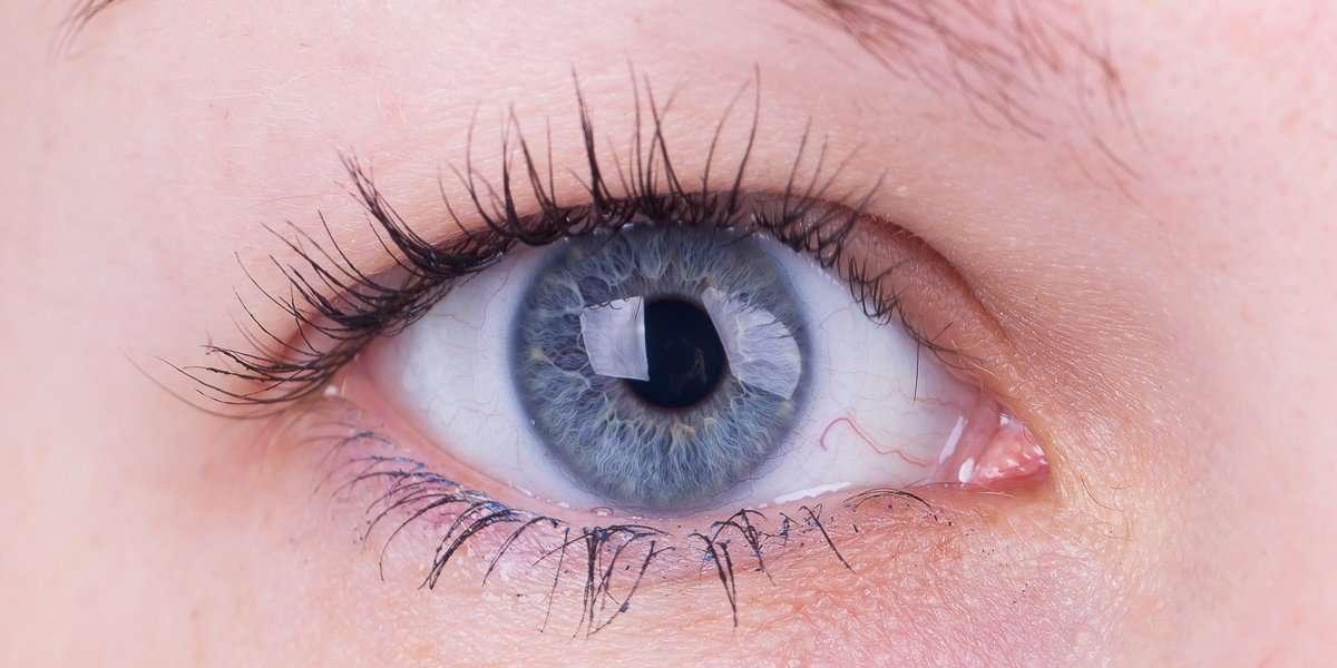 Refractory Eye Surgery Assessment