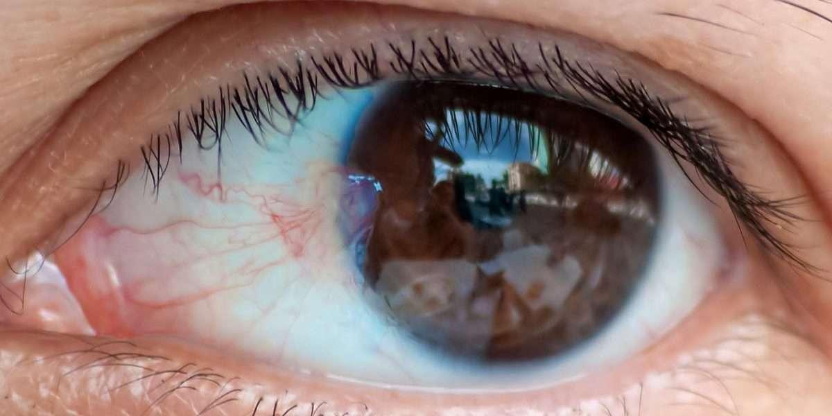 Pterygium, Surfer's Eye